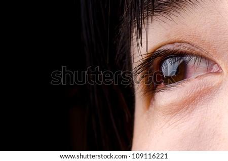eye with blood streak of asian woman - stock photo