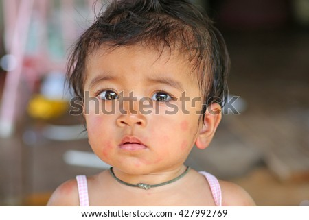 face baby rashes, dermatitis - stock photo