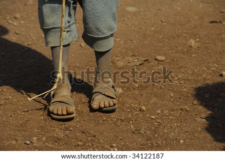 feet of a poor child - stock photo