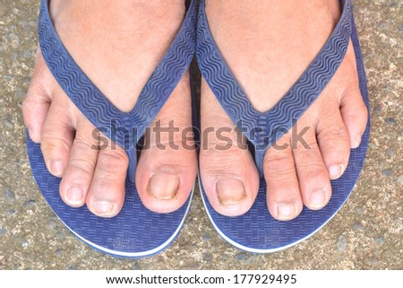 Feet with dirty toe nails - stock photo