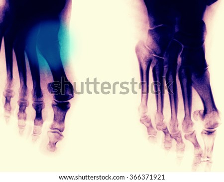 Feet Xray photo - stock photo