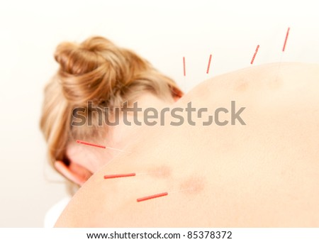 Female acupuncture patient showing good redness at the needle points, a sign of good response to the treatment - stock photo