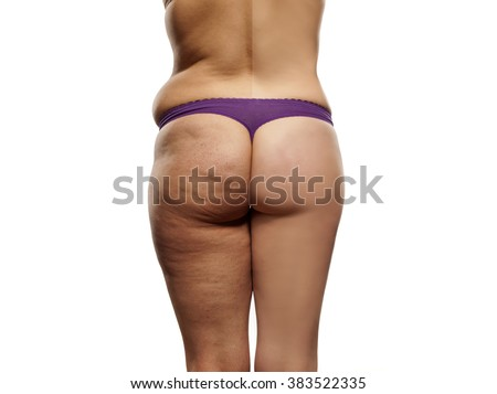 female body before and after liposuction - stock photo