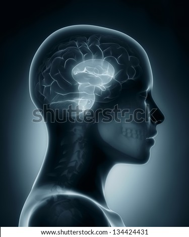 Female Brain stem medical x-ray scan - stock photo