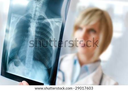 Female doctor examining an x-ray - stock photo