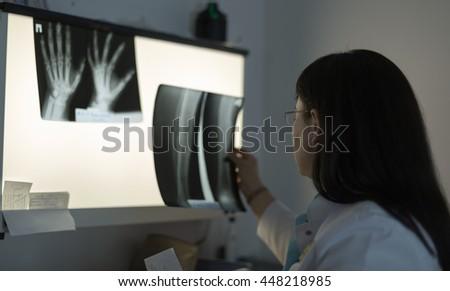 Female doctor examining an x-ray - stock photo