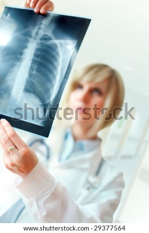 Female doctor examining an x-ray image - stock photo