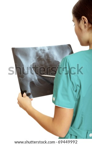 Female doctor examining an x-ray image. Focus is on the x-ray image. - stock photo