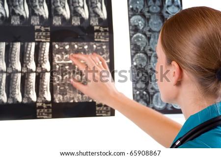 Female Doctor examining MRI image - stock photo