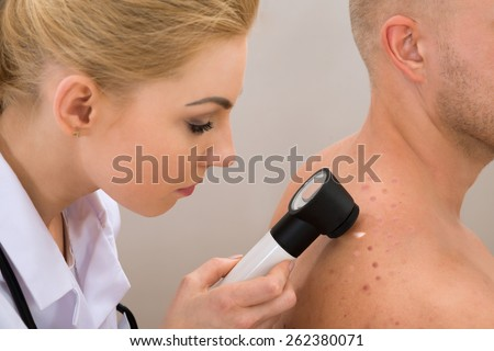 Female Doctor Examining Pigmented Skin With Dermatoscope - stock photo