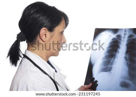 female doctor looking at the x-ray picture of lungs  - stock photo