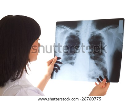 Female doctor looking at x-ray image on white