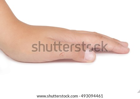 Female hand with warts isolated on the white background