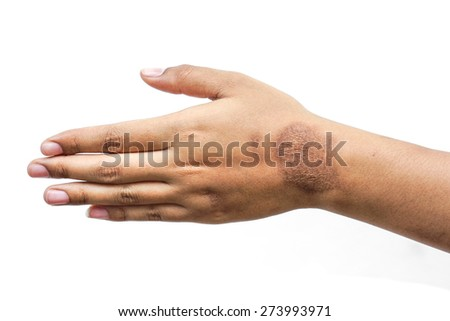 female hand with wound scar
