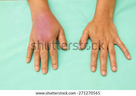 Female hands one swollen and inflamed after accident - stock photo