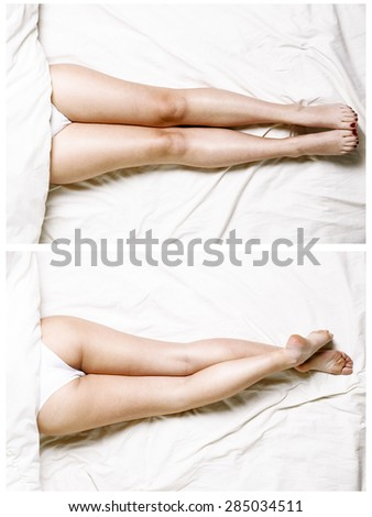 Female legs - stock photo