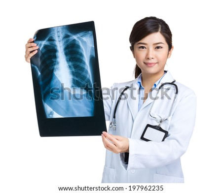 Female medical doctor hold x ray