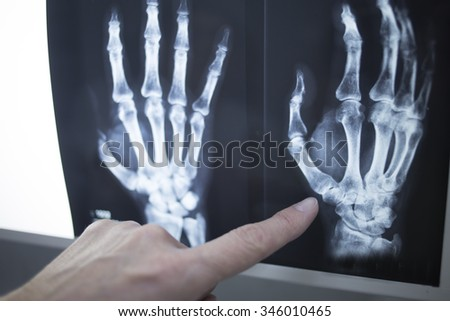 Female medical doctor pointing with finger at radiograph x-ray image on viewing light screen monitor showing hand of patient in scan. - stock photo
