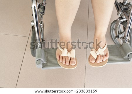 Female patient's leg sitting on wheel chair at hospital - stock photo