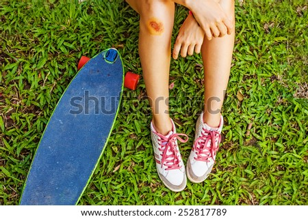 female skater with an injured leg faceless closeup