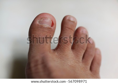 Bleeding At Toe. Royalty Free Stock Photo - Image: 31709735