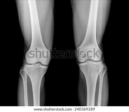 Film both knees antero-posterior view - stock photo