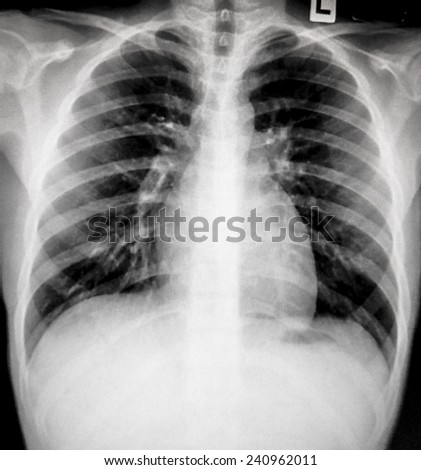 Film Chest X-ray