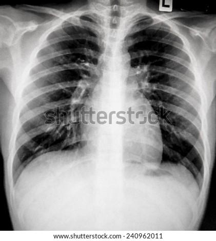 Film Chest X-ray - stock photo