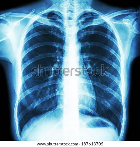 Film chest x-ray PA upright : show normal human's chest - stock photo