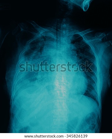 film chest x-ray show alveolar infiltrate at lung due to Mycobacterium tuberculosis infection (Pulmonary Tuberculosis) - stock photo