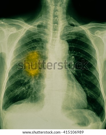 film chest x-ray show cavity at right lung,fibrosis & interstitial & patchy infiltrate at both lung due to Mycobacterium tuberculosis infection (Pulmonary Tuberculosis) - stock photo
