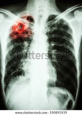 film chest x-ray show cavity at right upper lung due to Mycobacterium tuberculosis infection (Pulmonary Tuberculosis) - stock photo