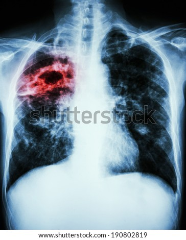 film chest x-ray show cavity,fibrosis & interstitial infiltrate at right lung due to Mycobacterium tuberculosis infection (Pulmonary Tuberculosis) - stock photo