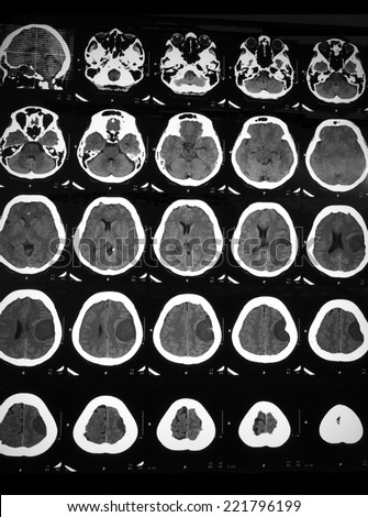 Film CT brain of a female patient with Fronto-parietal Meningioma, and hematoma at left frontoparietal lobes.