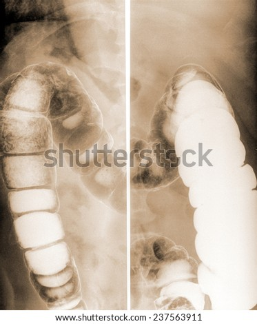 Hydronephrosis Stock Photos, Royalty-Free Images & Vectors ...