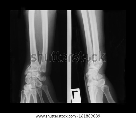 Film left wrist including forearm and hand of an adult, antero-posterior (AP) and lateral view; demonstrated fracture of distal Radius bone without dislocation. - stock photo