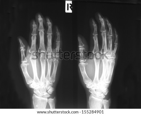 Film right hand, antero-posterior and lateral views: demonstrated fracture of first phalanx of fifth finger. - stock photo