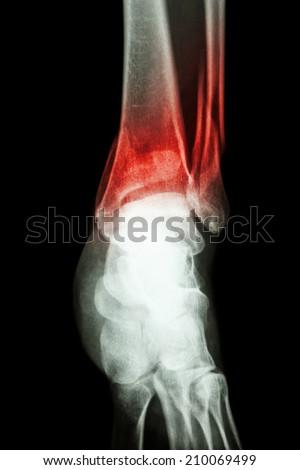 film x-ray ankle show fracture distal tibia and fibula (leg's bone) - stock photo