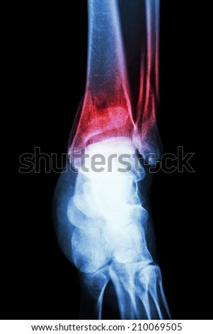 film x-ray ankle show fracture distal tibia and fibula (leg's bone) - stock photo