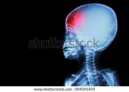 film x-ray body of child and headache ( brain disease ) ( isolated ) - stock photo