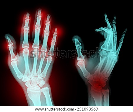 film x-ray both hand AP : show normal patient's hands on black background (isolated) - stock photo