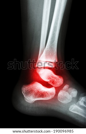 Film x-ray child's ankle and arthritis at ankle (Rheumatoid) - stock photo