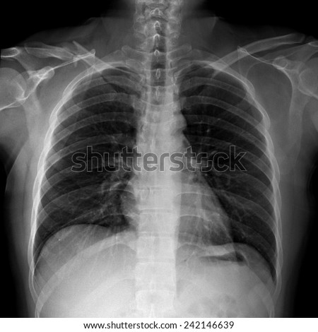 film x-ray right clavicle(collarbone ) : show fracture right clavicle. - stock photo