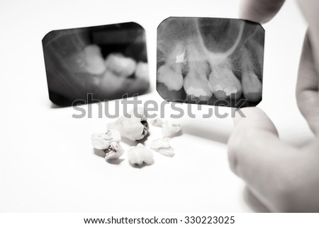 Film X-Ray scan for impacted tooth and tooth removal ; black & white tone  - stock photo