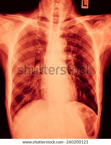 film X-Ray scan human - stock photo