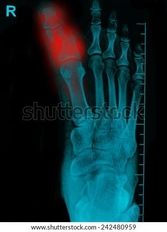 film x-ray show broken bones - stock photo
