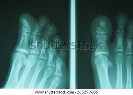 film x-ray show fracture toe bone at first toe.