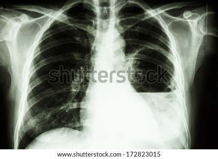 film X-ray show left lung abscess from Burkholderia pseudomallei infection (Mellioidosis)