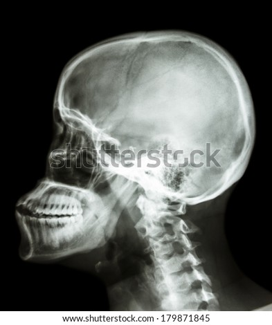 film x-ray skull lateral : show human's skull and cervical spine