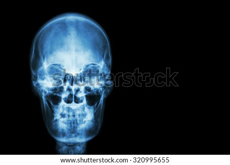 film x-ray skull of human and blank area at right side ( Medical , Science and Healthcare concept and background )